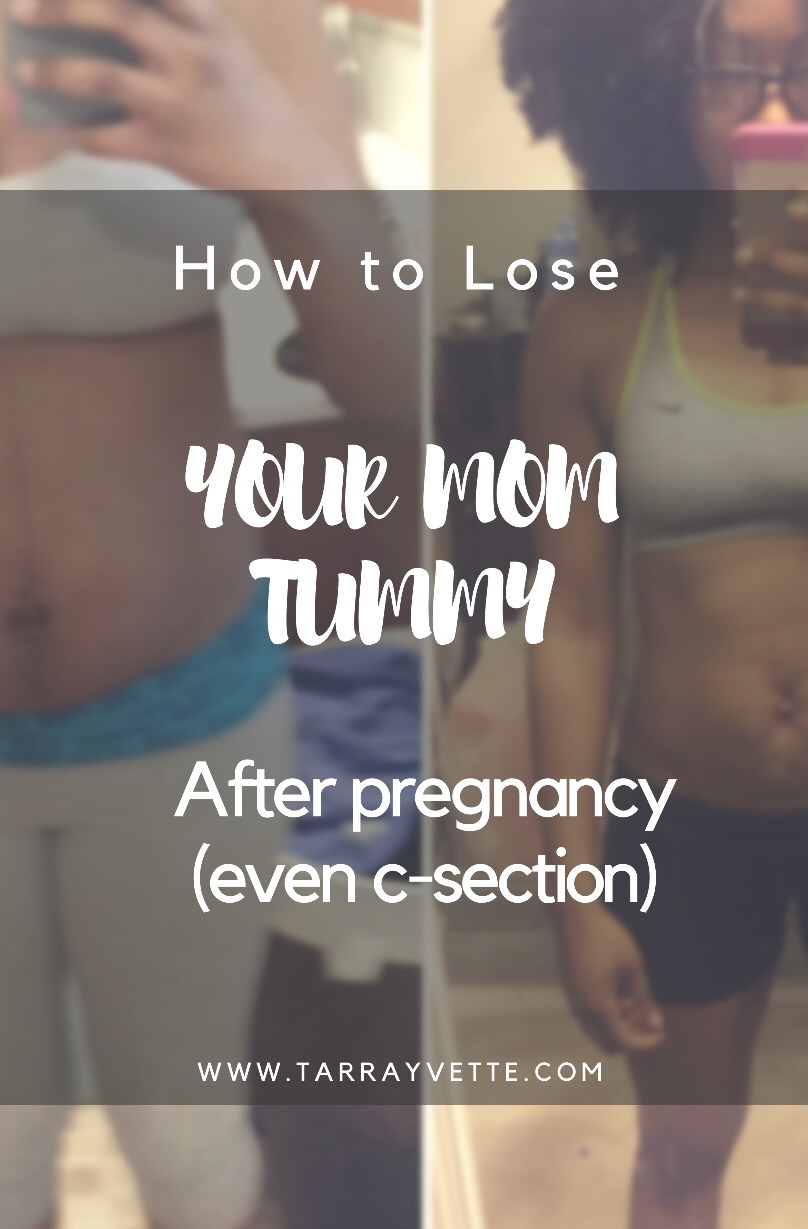 Diastasis recti – how I got my flat tummy post C-Section